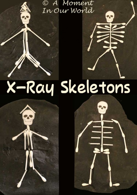 x Ray Skeletons