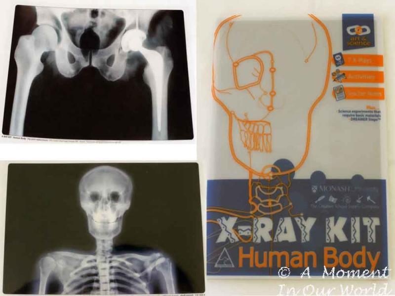 X Ray Kit